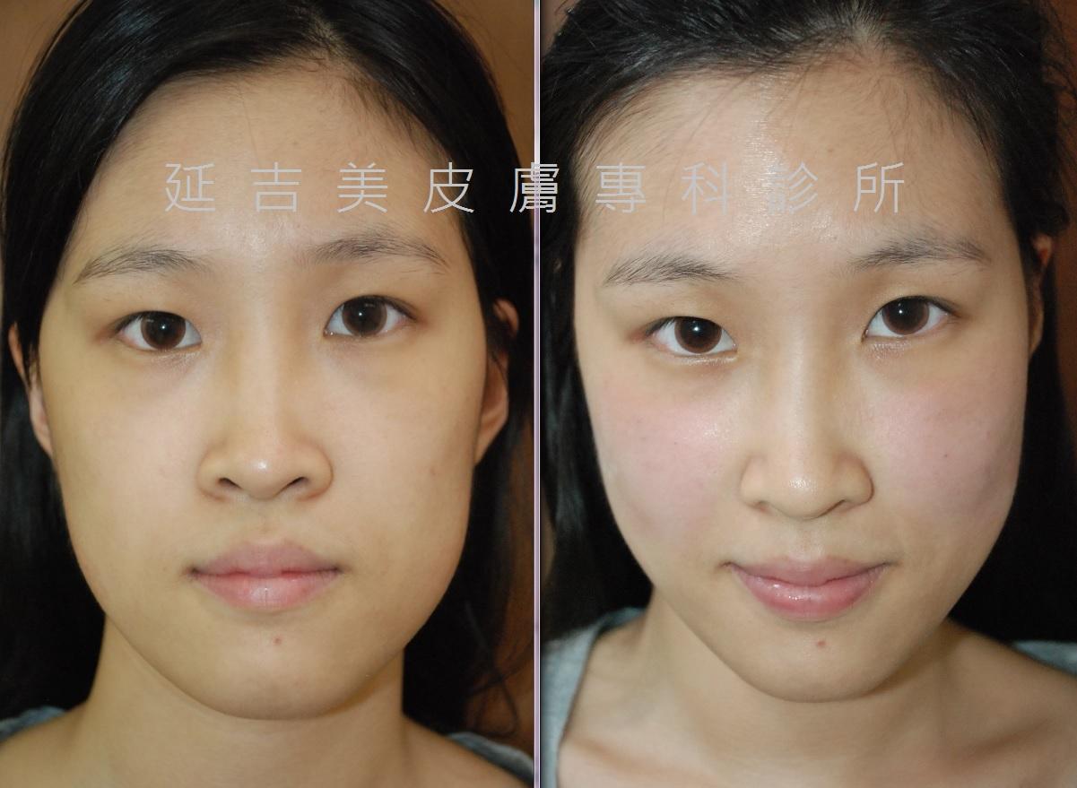 玻尿酸雕塑臉部線條-正面