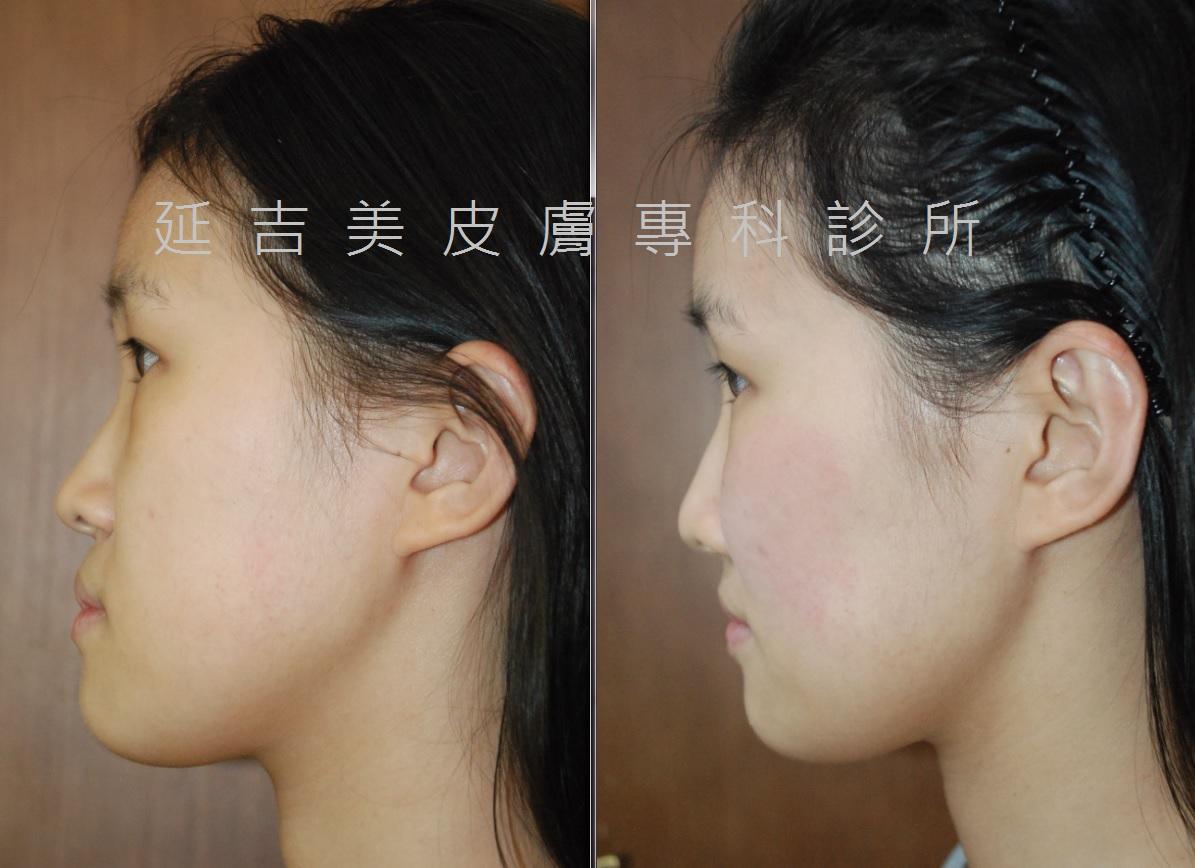 玻尿酸雕塑臉部線條-側面