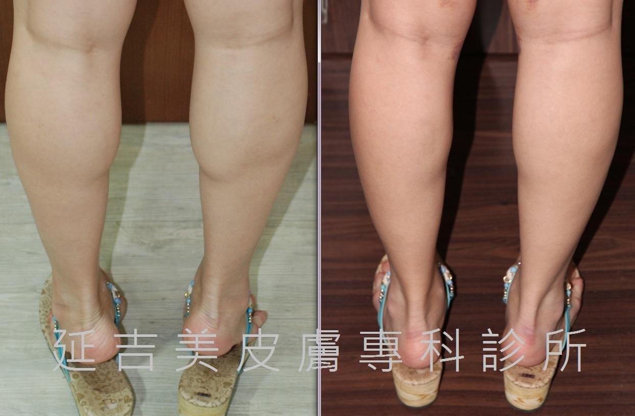 肉毒桿菌注射小腿-消蘿蔔腿1