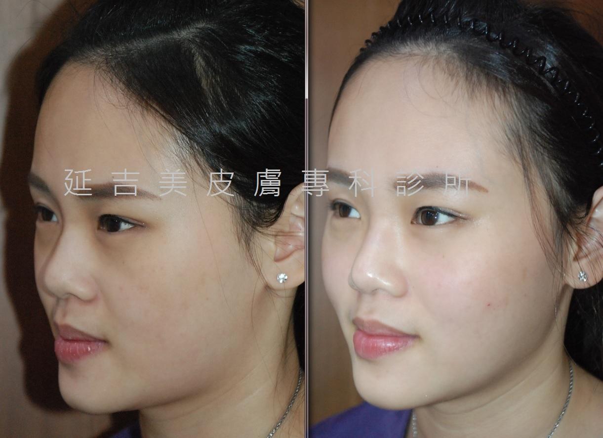 玻尿酸注射眼周豐頰-測面