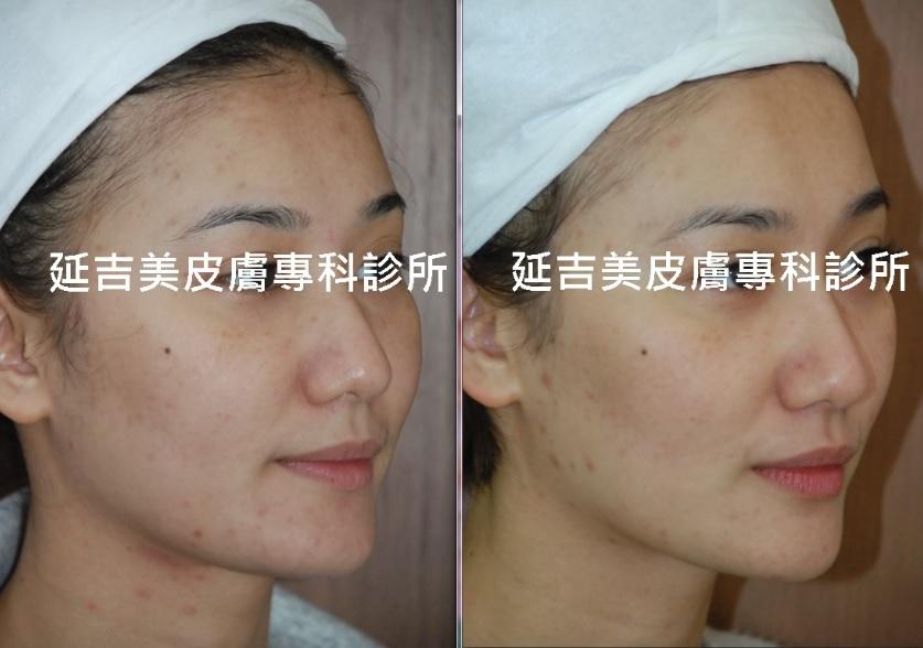 肉毒桿菌注射緊緻臉部線條-女側面