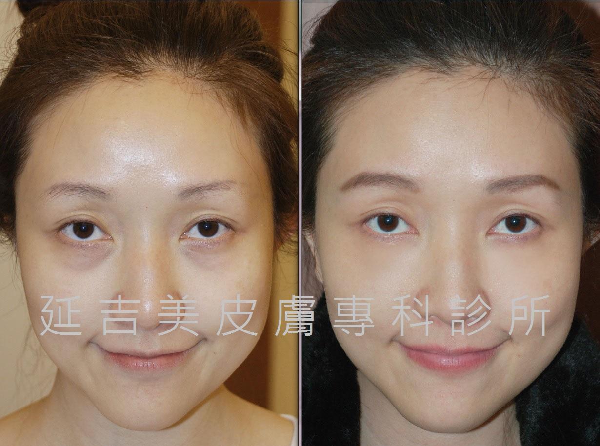 玻尿酸注射改善黑眼圈
