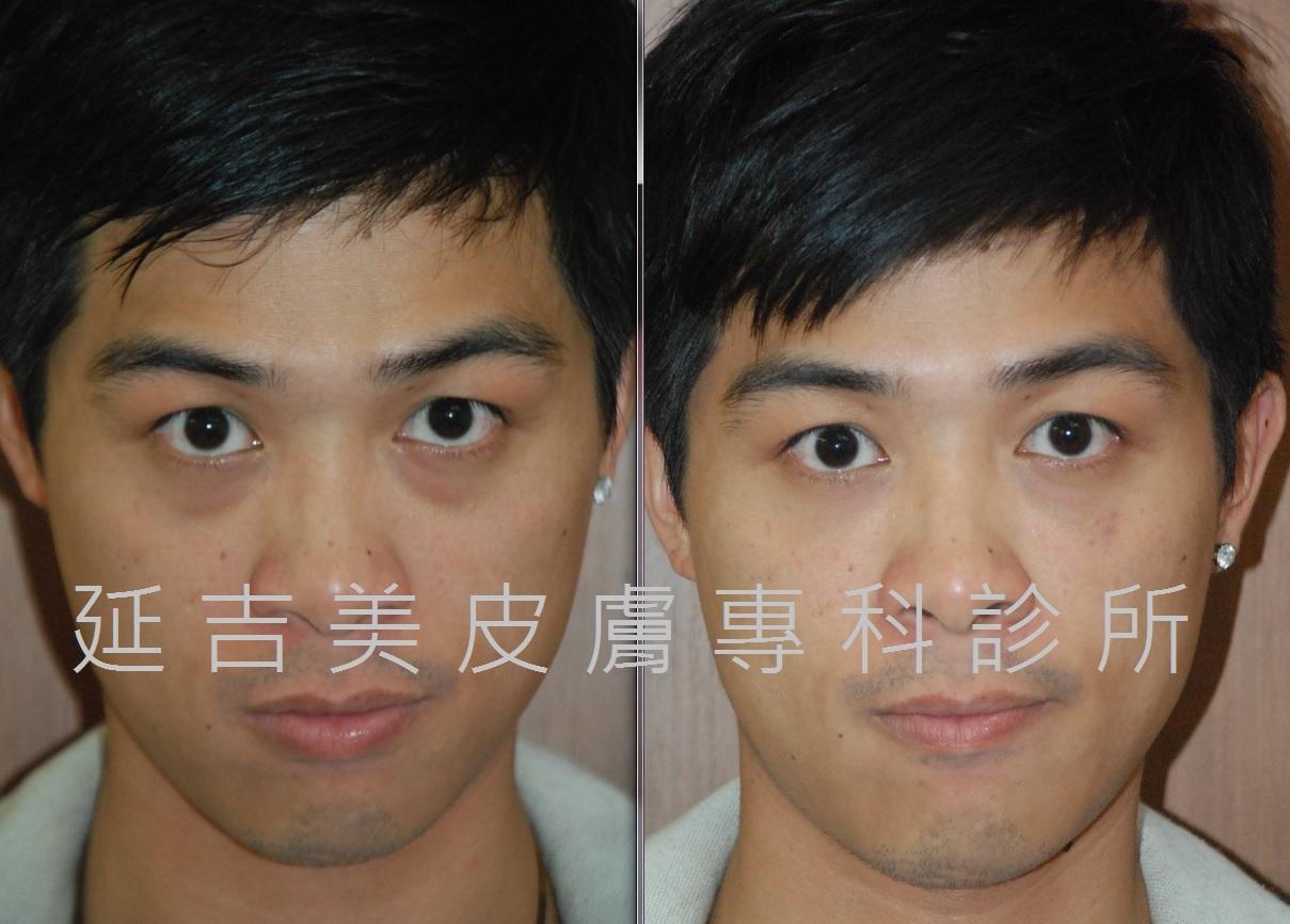 玻尿酸注射臉部改善淚溝