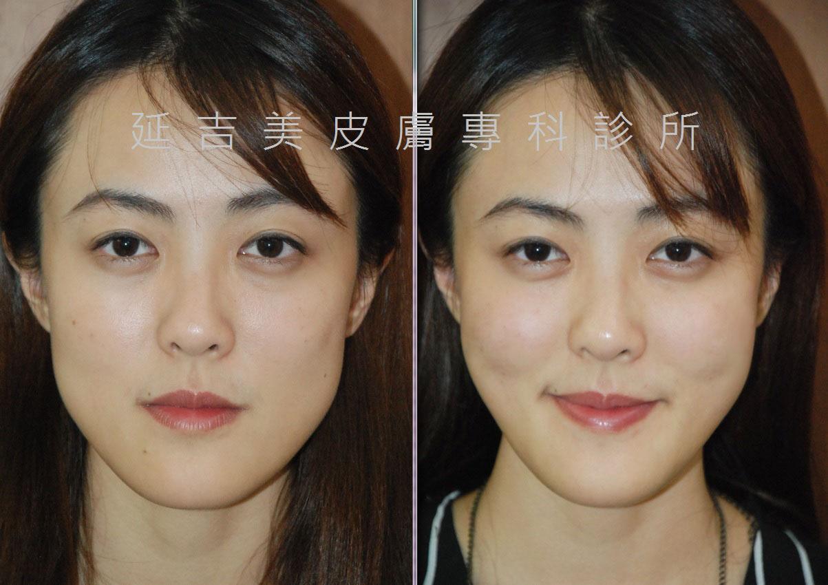 玻尿酸豐頰雕塑臉型