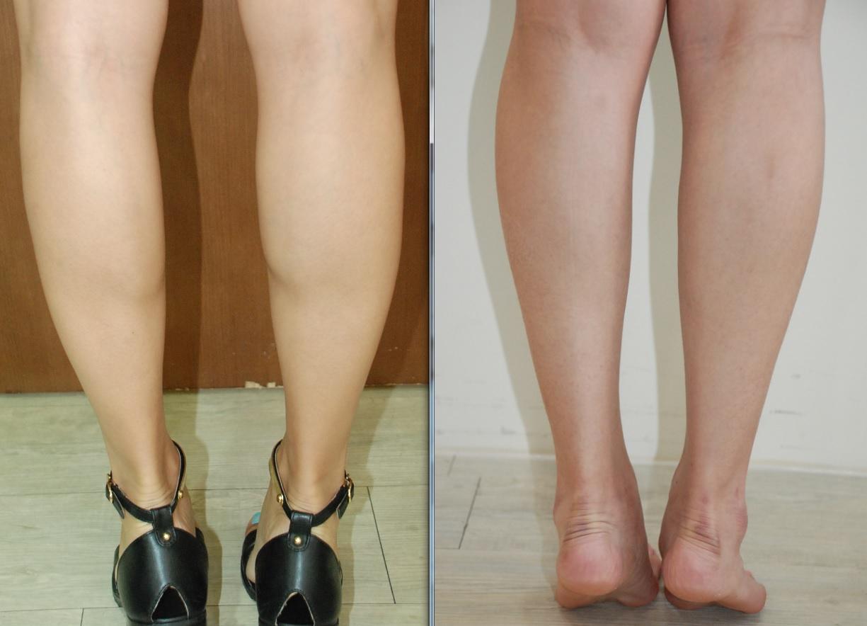 肉毒桿菌注射小腿-消蘿蔔腿2