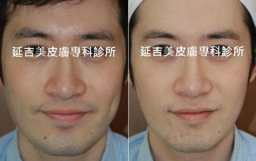 肉毒桿菌注射塑臉-男正面