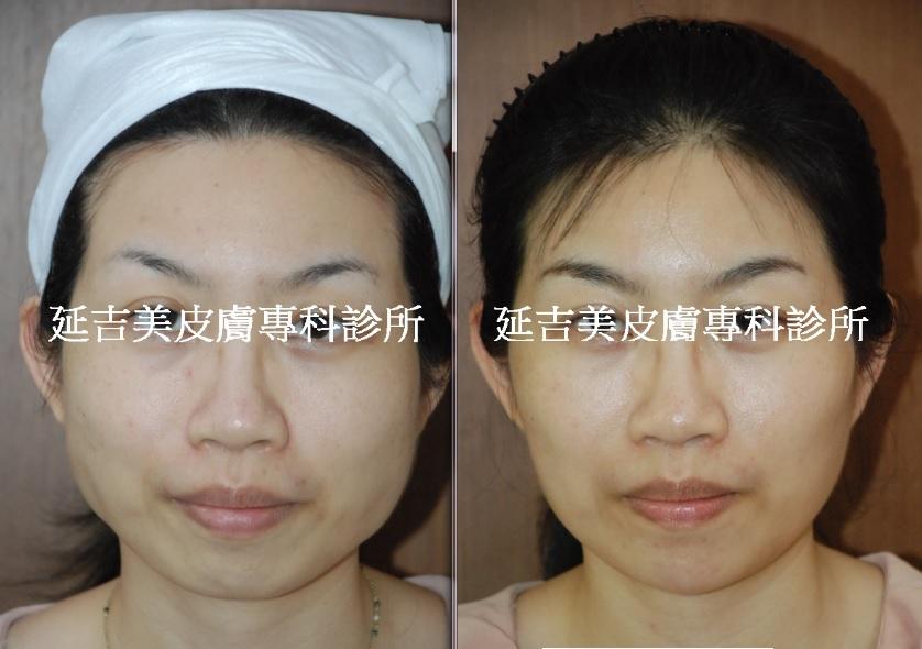 肉毒桿菌消國字臉-1