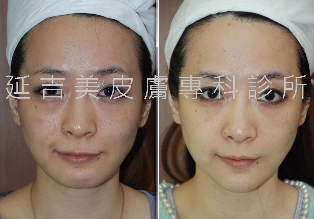 玻尿酸塑臉-1