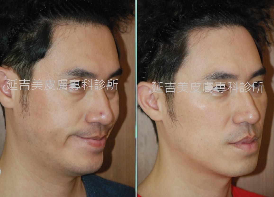 肉毒桿菌注射塑臉-男側面