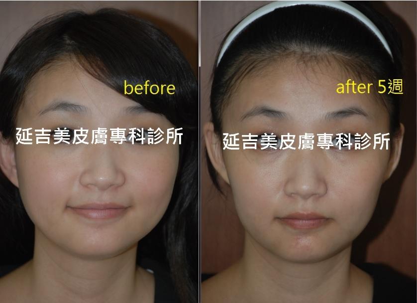 肉毒消國字臉-2
