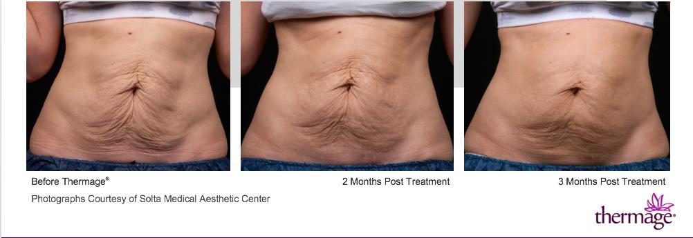 腹部鬆弛經3個月電波拉皮療程